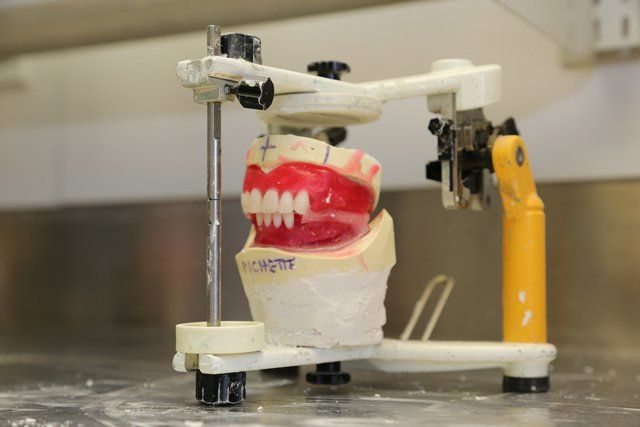 Denture Fabrication